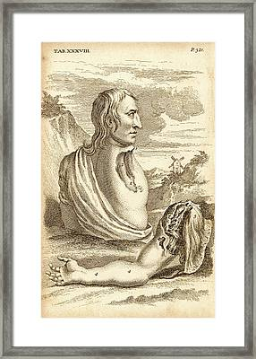 Surgery On Amputated Arm And Scapula Framed Print by Universal History Archive/uig
