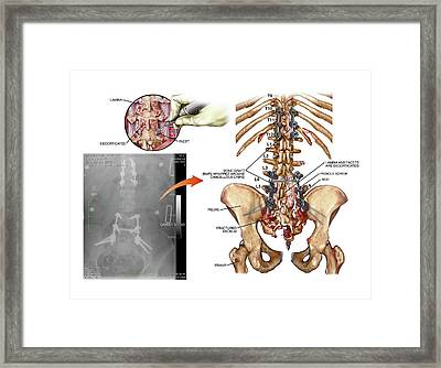 Surgery To Fuse Thoracic And Lumbar Spine Framed Print by John T. Alesi