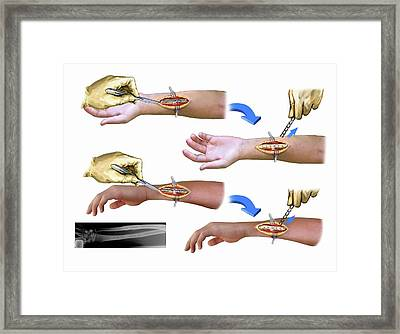 Surgery To Remove Bone Plates Framed Print by John T. Alesi