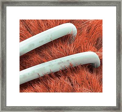 Surgical Staples Framed Print by Steve Gschmeissner