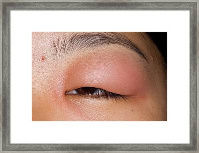Swollen Eyelid After Insect Bite Framed Print by Dr P. Marazzi/science Photo Library