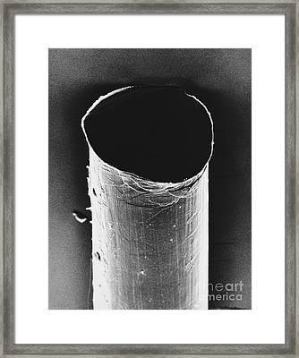 Tail Of An Iud Sem Framed Print by David M. Phillips / The Population Council