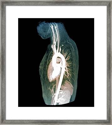 Takayasu's Arteritis Framed Print by Zephyr