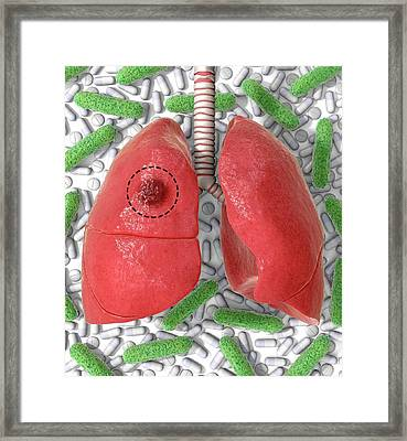 Tb Drug Resistance And Surgery Framed Print by Animated Healthcare Ltd