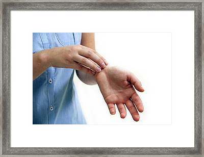 Teenage Girl Scratching Wrist Framed Print by Lea Paterson