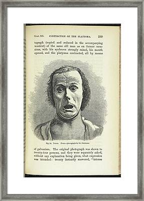 Terror. From A Photograph By Dr. Duchenne Framed Print by British Library