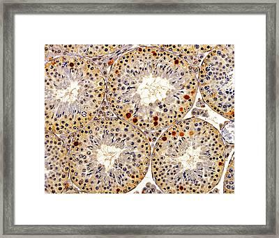 Testis Sperm Production Framed Print