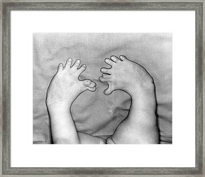 Thalidomide Deformity Framed Print by Otis Historical Archives, National Museum Of Health And Medicine