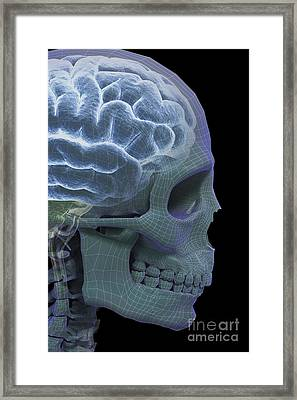 The Skull And Brain Framed Print by Science Picture Co