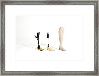 Three Prosthetic Legs Framed Print