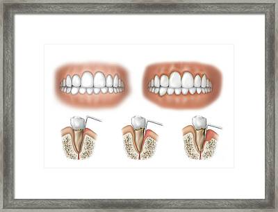 Three Stages Of Periodontal Disease Framed Print
