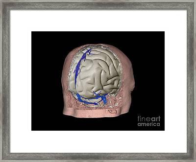 Thrombophlebitis In The Brain, 3d Ct Scan Framed Print by Zephyr