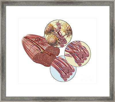 Torn Muscle Fibers With Healing Stages Framed Print