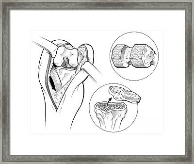 Total Knee Replacement Framed Print