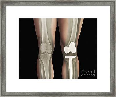 Total Knee Replacement, X-ray Framed Print by Zephyr