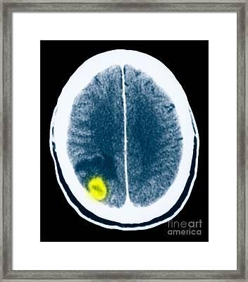 Toxoplasmosis Of The Brain Framed Print by Scott Camazine