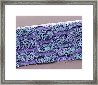 Transdermal Patch Framed Print by Steve Gschmeissner