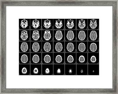 Transverse Cranial C T Scan Framed Print
