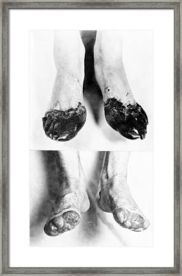 Trench Foot Framed Print