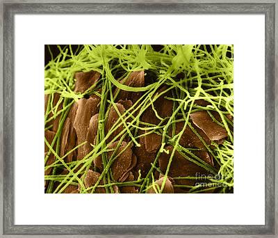 Trichophyton Fungus, Sem Framed Print