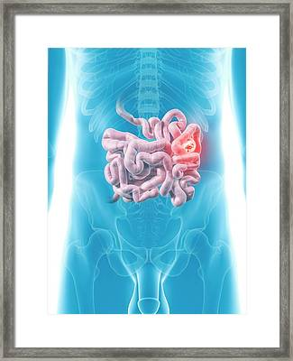 Tumor In Small Intestine Framed Print