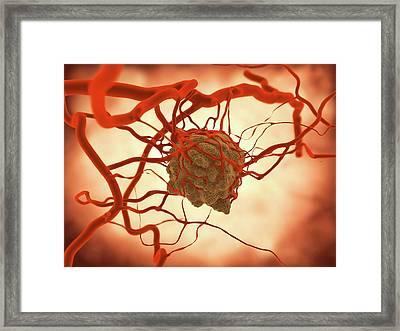 Tumor Framed Print