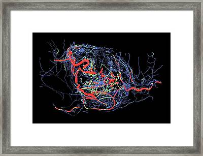 Tumour Blood Vessels Framed Print by Dr. Simon Walker-samuel, Ucl Cabi