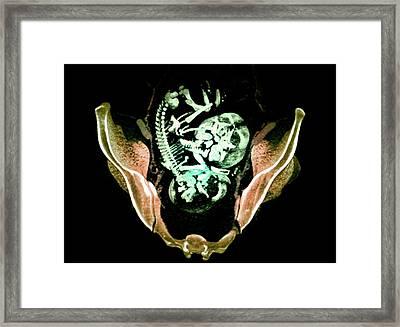 Twin Foetuses Framed Print by Du Cane Medical Imaging Ltd
