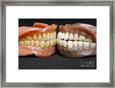 Two Sets Of Dentures Framed Print by Medicimage