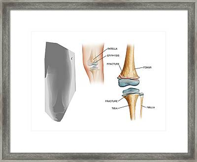 Type II Salter Fracture In The Knee Framed Print