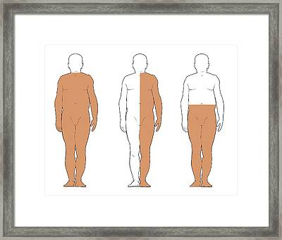 Types Of Partial Paralysis Framed Print
