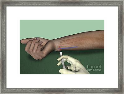 Ulnar Nerve Wrist Block, Artwork Framed Print by D & L Graphics