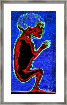 Unborn Fetus Framed Print by Howard Koby