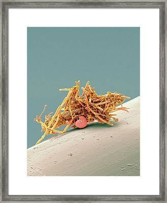 Used Interdental Brush Framed Print by Steve Gschmeissner