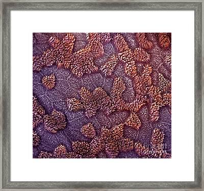 Uterine Surface Framed Print