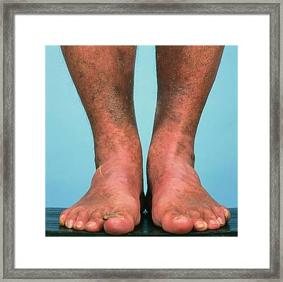 Varicose Vein Bruising Framed Print by Alex Bartel/science Photo Library