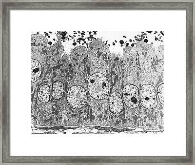 Vas Deferens, Tem Framed Print by David M. Phillips