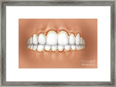 View Of Teeth Showing Gingivitis Framed Print