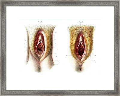 Virgin And Non-virgin Vulva Anatomy Framed Print by Collection Abecasis