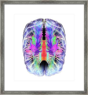 White Matter Fibres And Brain Framed Print