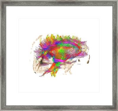 White Matter Fibres Framed Print by Zephyr
