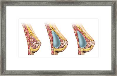 Woman Breast Implant Cross Section Framed Print by Leonello Calvetti