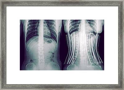 Woman Wearing A Corset X-ray Framed Print by Guy Viner