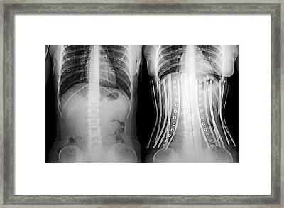 Woman Wearing A Corset X-ray Framed Print by Photostock-israel