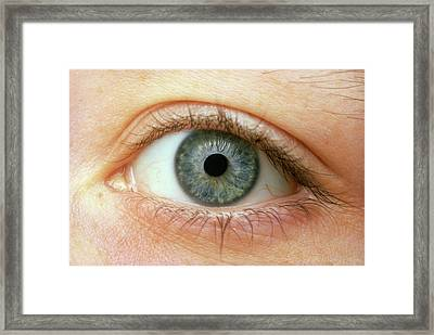 Woman's Right Eye Framed Print by Martin Dohrn/science Photo Library