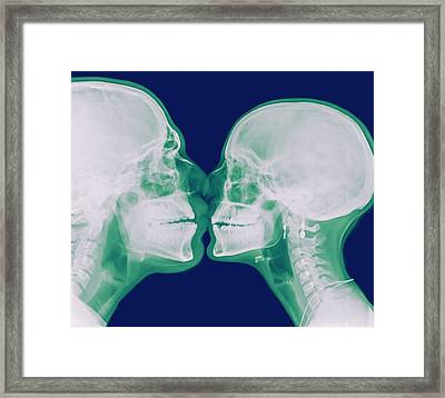 X-ray Kissing Framed Print by Photostock-israel