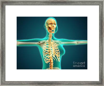 X-ray View Of Female Upper Body Showing Framed Print