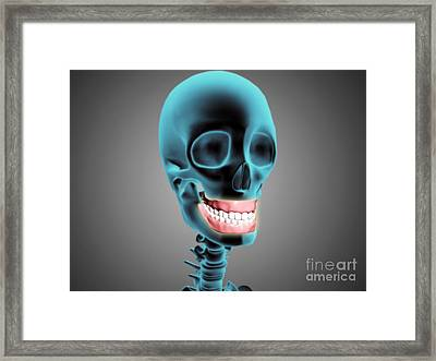 X-ray View Of Human Skeleton Showing Framed Print by Stocktrek Images