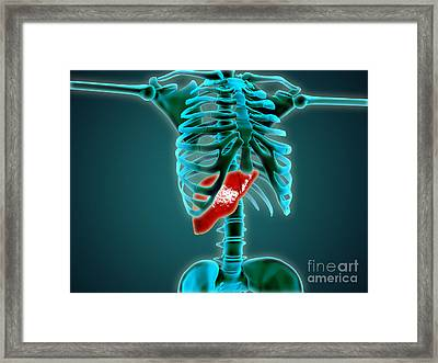 X-ray View Of Human Skeleton With Liver Framed Print