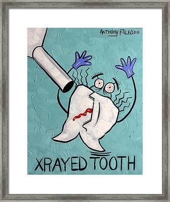 Xrayed Tooth Framed Print by Anthony Falbo